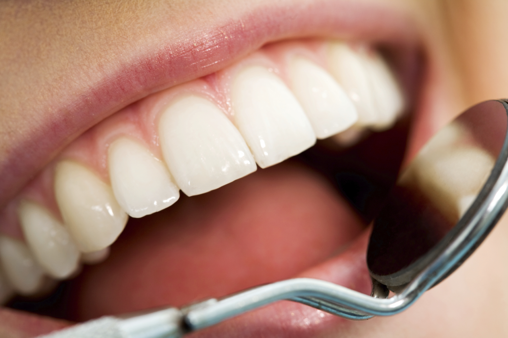 Finding the Best Dental Insurance For You