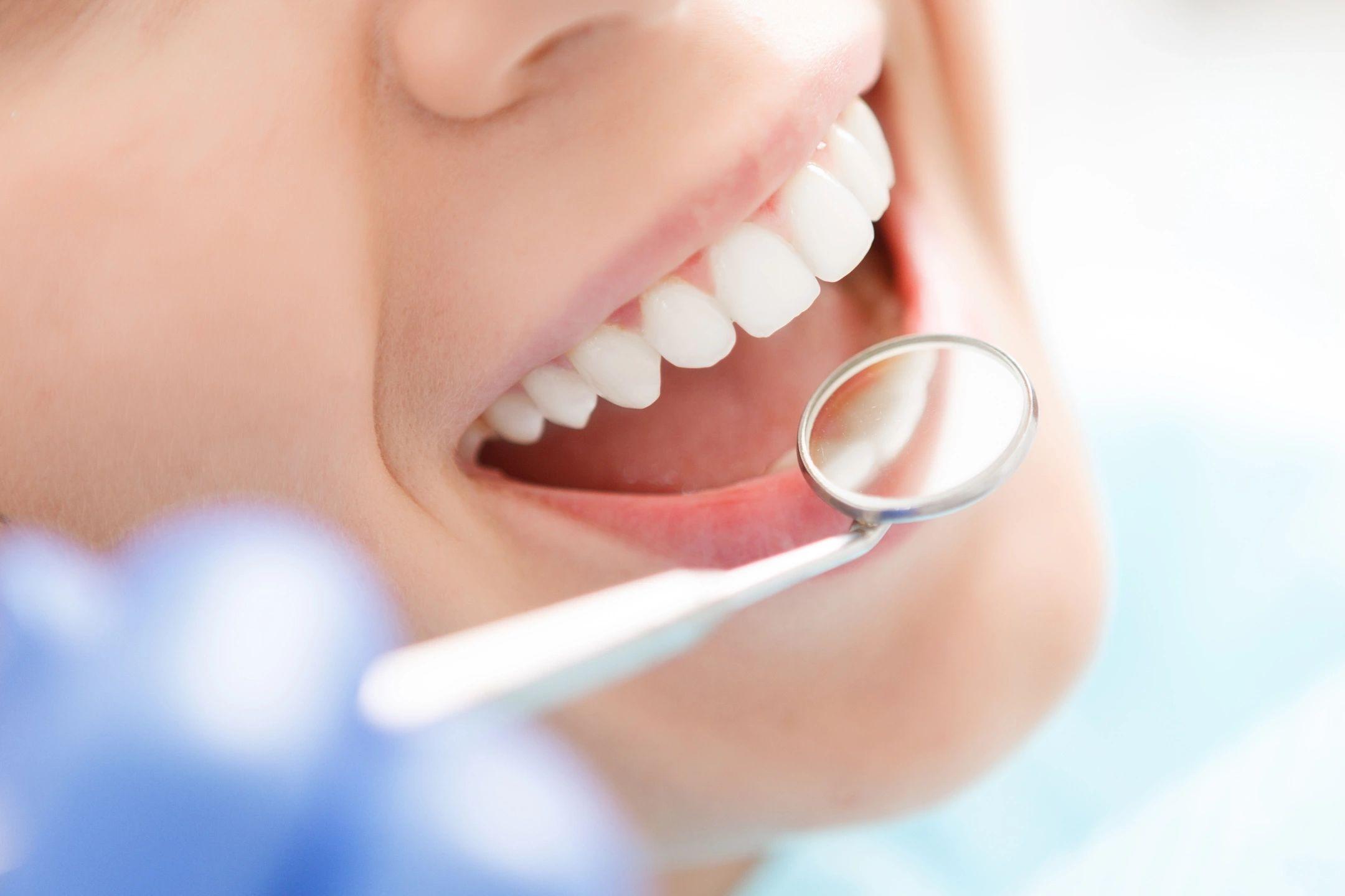 Guardian Dental Insurance - An Honest Review