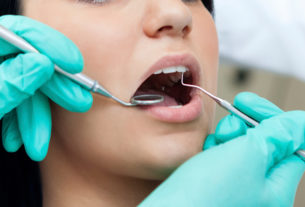 The Different Types of Personal Dental Insurance